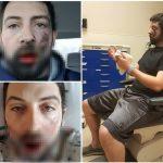 Elektroninių cigarečių mėgėjas patyrė antrojo laipsnio nudegimus, prarado septynis dantis ir traukia plastiko gabaliukus iš savo veido po e-cigaretės sprogimo